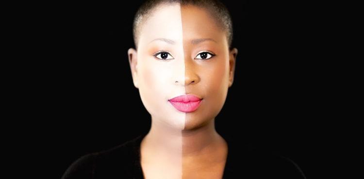 Voici les causes de la dépigmentation volontaire des femmes noires